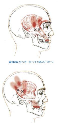 頭痛(側頭筋)