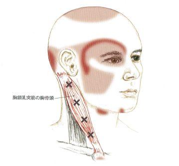 頭痛(胸鎖乳突筋)